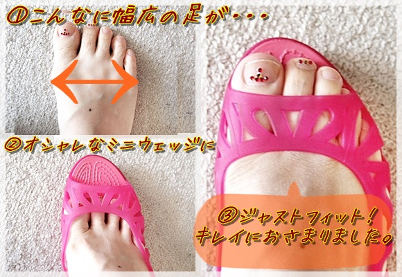 adrina 3.0 mini wedge w (9)
